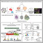 单细胞转录组+空间转录组联合绘制人类鳞状细胞癌组成和空间结构的多模式图谱